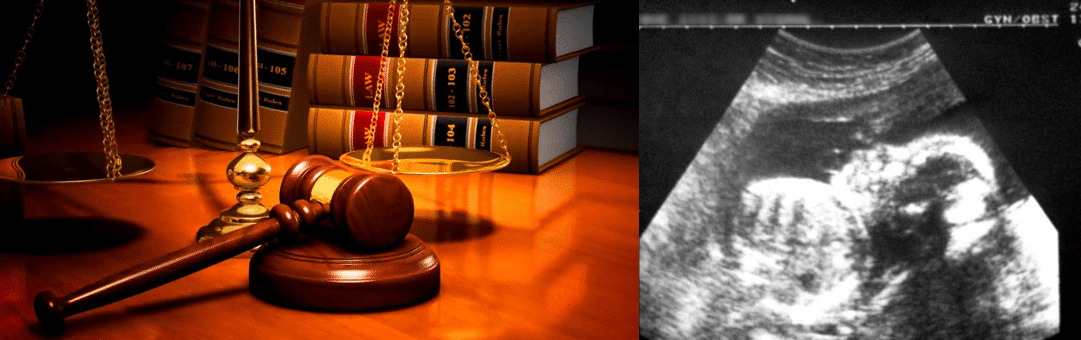 La mort fœtus